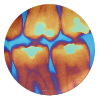 Teeth with fillings (green), coloured X-ray. Party Plates