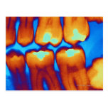 Teeth with fillings (green), coloured X-ray. Postcard