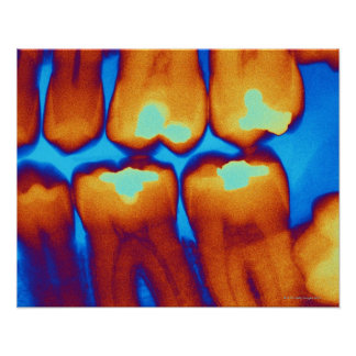Teeth with fillings (green), coloured X-ray. Posters