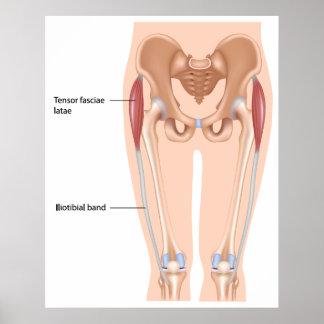 Tensor fasciae latae muscle Poster
