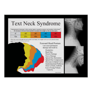 Text Neck Syndrome Chiropractic Poster
