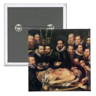 The Anatomy Lesson of Doctor Willem van der Button