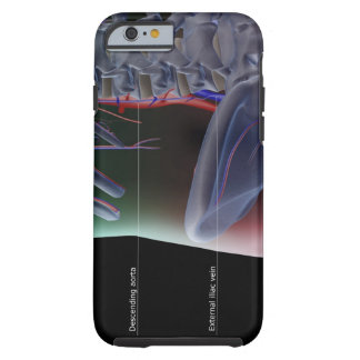 The blood supply of the lower back tough iPhone 6 case