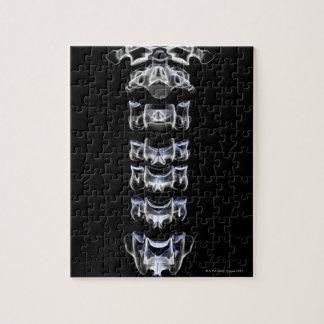 The Cervical Vertebrae 4 Jigsaw Puzzle