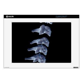 The Cervical Vertebrae 6 Laptop Skins