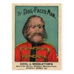 The Dog Faced Man Postcard