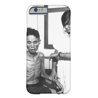The effects of just one month spent in a Viet Cong Barely There iPhone 6 Case