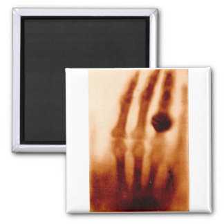 The First X-Ray, 1901, Photograph 2 Inch Square Magnet