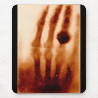 The First X-Ray, 1901, Photograph Mouse Pad