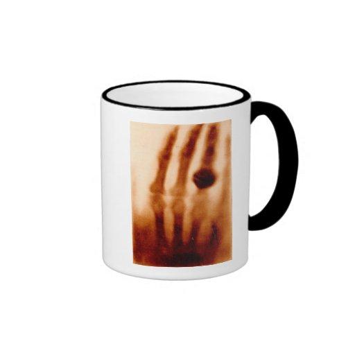 The First X-Ray, 1901, Photograph Coffee Mugs