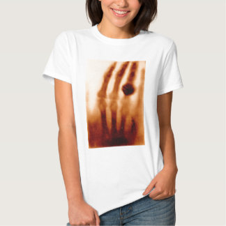 The First X-Ray, 1901, Photograph T Shirts