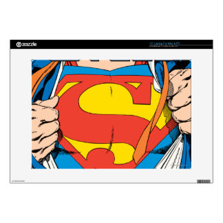 """The Man of Steel #1 Collector's Edition Decal For 15"""" Laptop"""