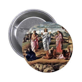 The Transfiguration Pinback Button