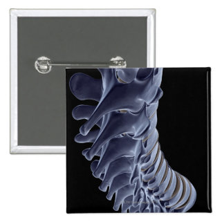 The Vertebral Column Pinback Button