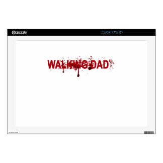 "The WALKING DAD (on dark) Father's Day Zombie T-sh Decals For 17"" Laptops"