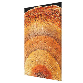 This cross section of pine wood shows the epidermi canvas print