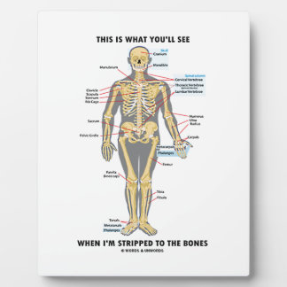 This Is What You'll See When I'm Stripped To Bones Plaque