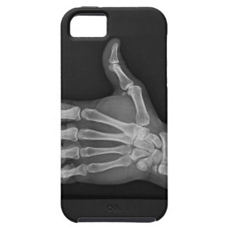 Thumbs up iPhone 5 cases