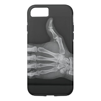 Thumbs up iPhone 7 case