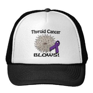 Thyroid Cancer Blows Awareness Design Trucker Hat
