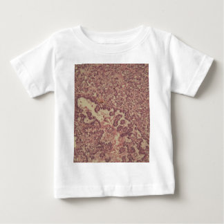 Thyroid gland cells with cancer baby T-Shirt