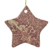 Thyroid gland cells with cancer ceramic ornament