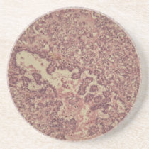 Thyroid gland cells with cancer coaster