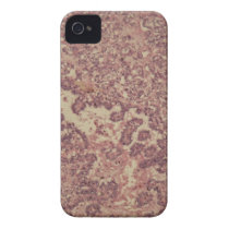 Thyroid gland cells with cancer iPhone 4 cover