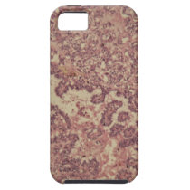 Thyroid gland cells with cancer iPhone SE/5/5s case