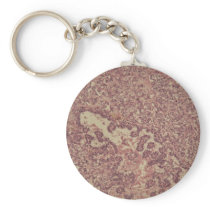 Thyroid gland cells with cancer keychain