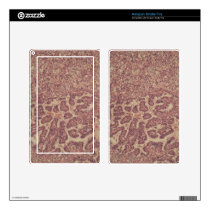 Thyroid gland cells with cancer kindle fire skin