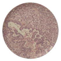 Thyroid gland cells with cancer plate