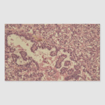 Thyroid gland cells with cancer rectangular sticker