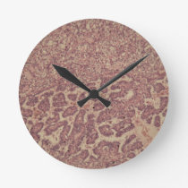 Thyroid gland cells with cancer round clock