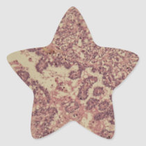 Thyroid gland cells with cancer star sticker