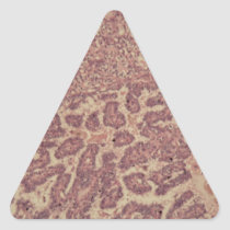 Thyroid gland cells with cancer triangle sticker