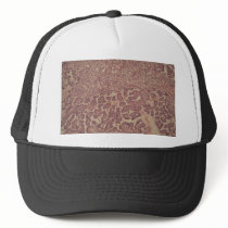 Thyroid gland cells with cancer trucker hat