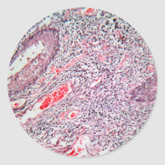 Tissue cells from a human cervix with cancer classic round sticker