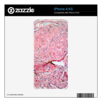 Tissue cells from a human cervix with cancer decal for the iPhone 4S