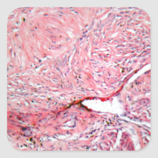Tissue cells from a human cervix with cancer square sticker