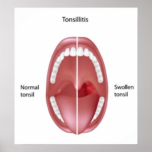 Tonsillitis Poster