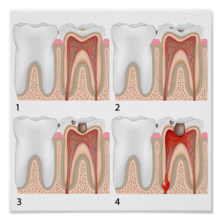 Tooth decay Poster