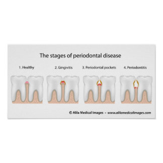 Tooth Periodontal Disease Poster