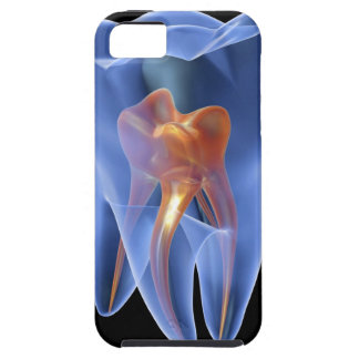 Tooth, transparent cross section of a molar iPhone SE/5/5s case