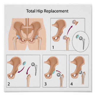 Total hip replacement surgery poster