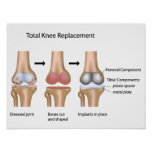 Total knee replacement surgery poster