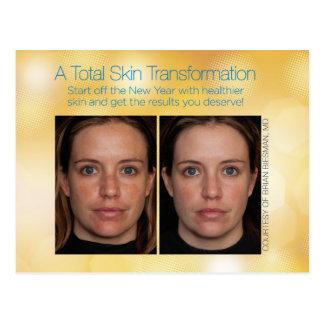 Total Skin Transformation Postcard