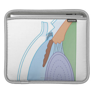 Trabeculectomy iPad Sleeve
