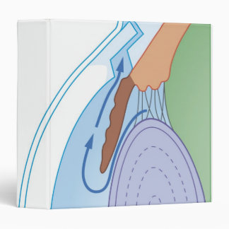 Trabeculectomy Procedure 3 Ring Binder