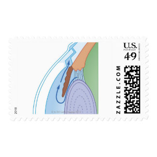 Trabeculectomy Procedure Postage